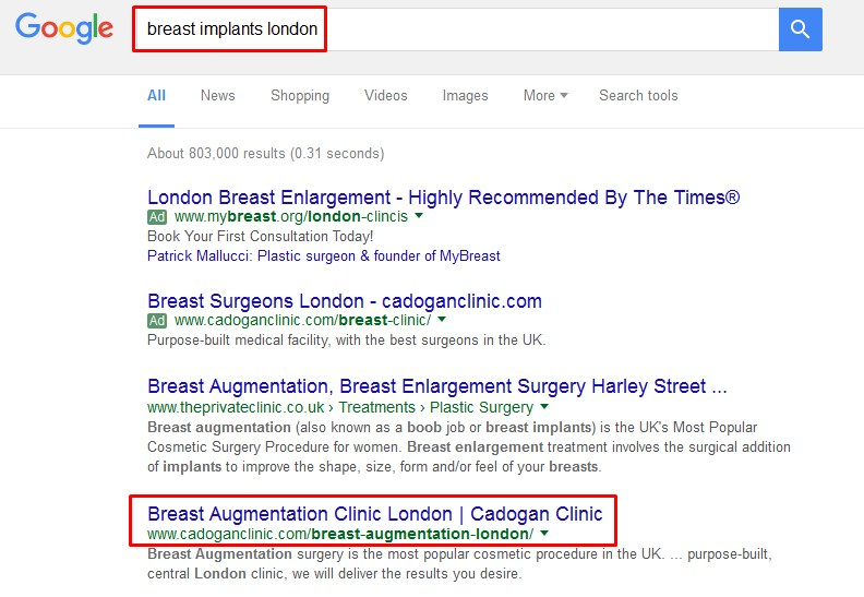 cadogan clinic breast implant london