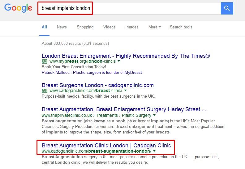 cadogan clinic breast implant london